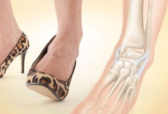 Distorsione-caviglia-cause